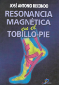 Resonancia magnética en tobillo-pie